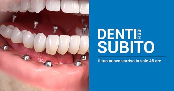 Denti fissi subito!