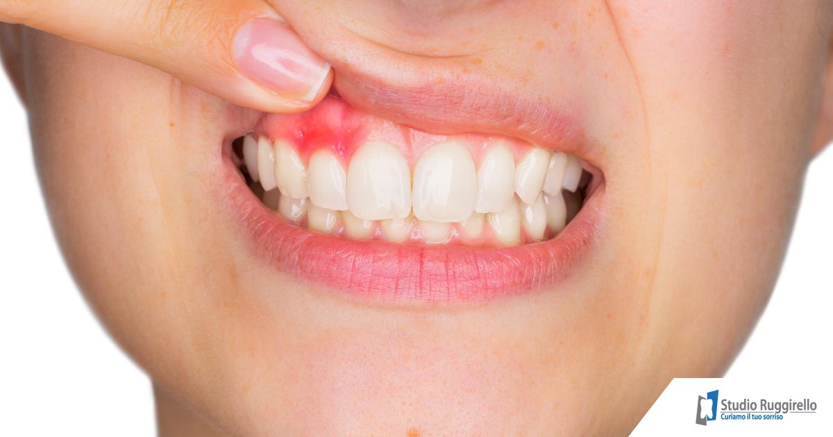 Parodontite: sintomi e cause